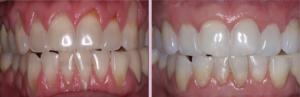 Parodontologia come curarla|Studio dentistico Modena